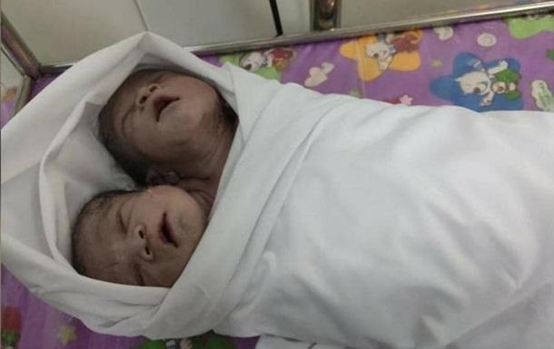 В Мьянме родился двухголовый мальчик